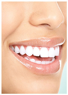Smile Makeover Dentist Clinton MS